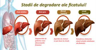 Românii știu că hepatita e gravă, dar nu se testează! - Sănătatea, afectată de lipsa educaţiei